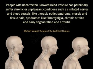 Is your poor posture affecting your health?